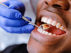 Man receiving dental examination