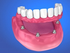 Translucent view of dental implants