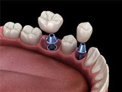 two dental implants with crowns