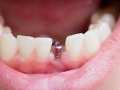 close-up of a dental implant with an abutment in someone's mouth