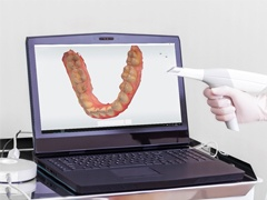 A digital impression scanner