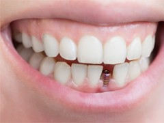 A person with a single tooth implant