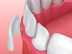 Animaiton of porcelain veneer placement