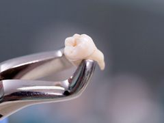 An extracted tooth
