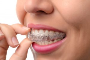 The Do's and Don'ts When Wearing Invisalign in Torrance
