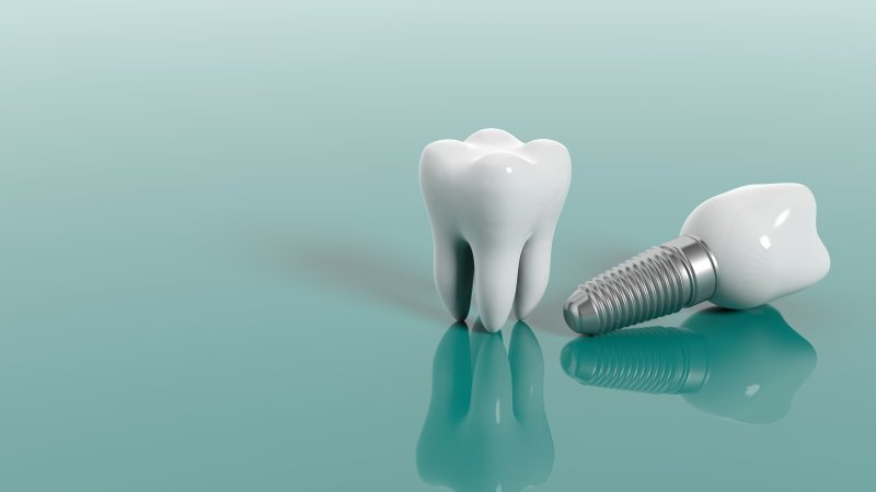 a regular tooth and a dental implant
