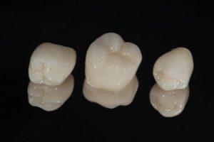 dental crowns in Torrance