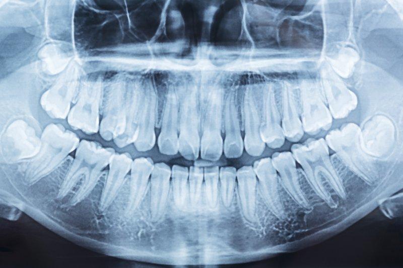 dental X-ray showing impacted wisdom teeth